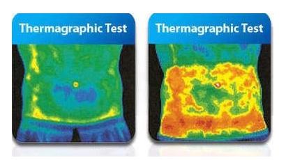 Topljenje maščobnih celic